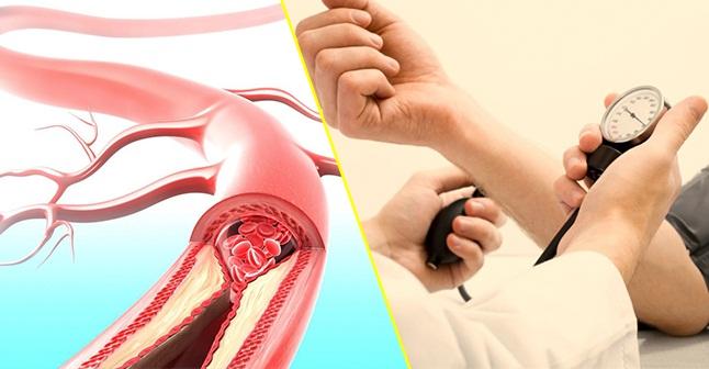 Xơ vữa động mạch-2