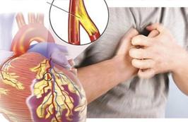 Dấu hiệu sớm của bệnh động mạch vành