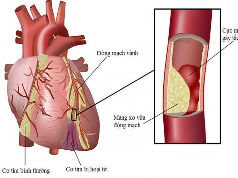 Bệnh mạch vành: Nguy cơ và phòng tránh
