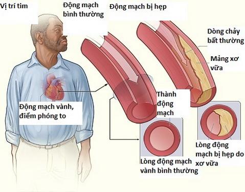 Phòng ngừa bệnh đau thắt ngực ổn định