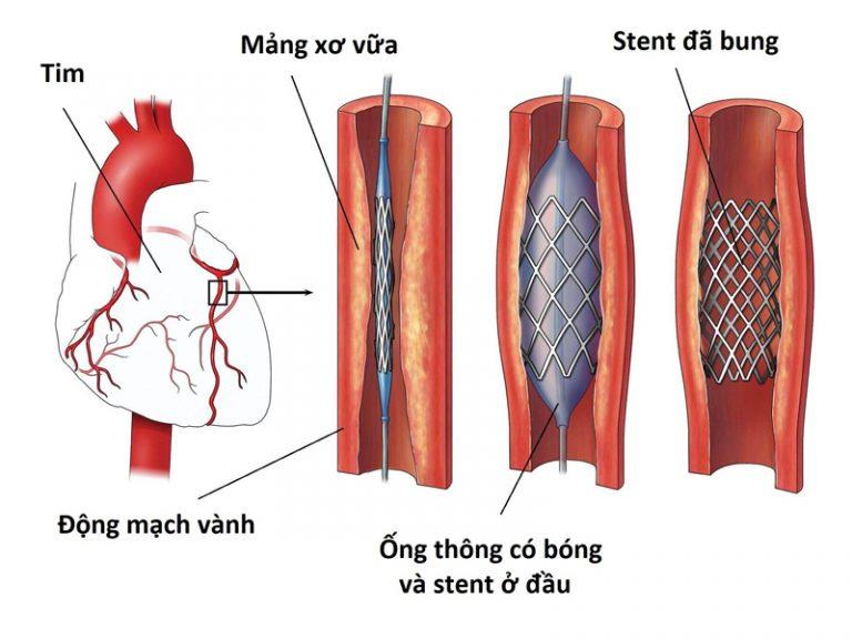 Những lưu ý không thể bỏ qua trước khi đặt stent mạch vành