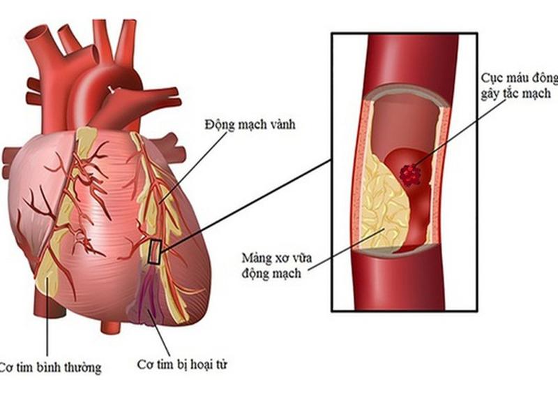 Bị hẹp động mạch vành, chỉ dùng thuốc tây y liệu có hiệu quả?