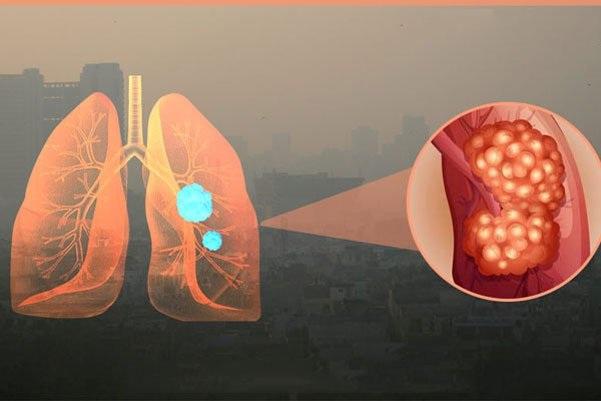 Ô nhiễm không khí gây các bệnh hô hấp