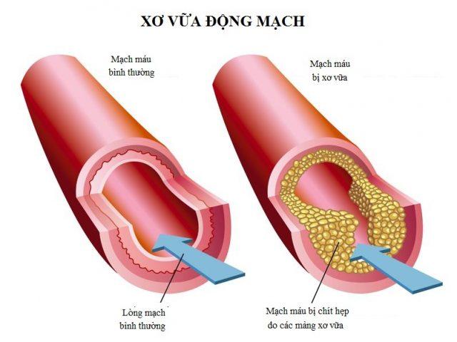 Xơ vữa động mạch – nhiều biến chứng nguy hiểm