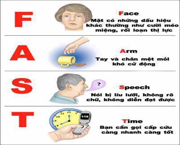 Nhận biết và sơ cứu tai biến mạch máu não tại nhà
