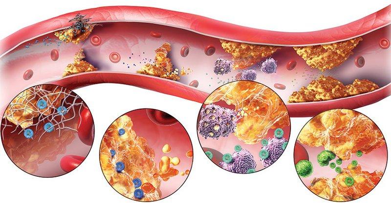 Rối loạn lipid máu: Nguyên nhân, triệu chứng và cách điều trị hiệu quả
