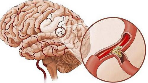 Thiểu năng tuần hoàn não: Sát thủ âm thầm gây đột quỵ