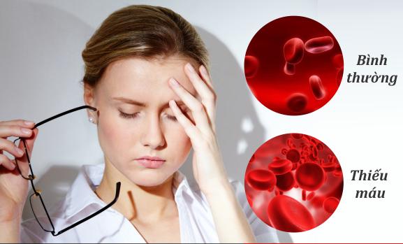 Giải pháp khắc phụ tình trạng máu lưu thông lên não kém