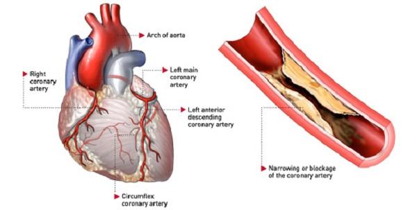 Bệnh mạch vành và những điều cần biết