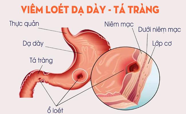 Tìm hiểu bệnh viêm loét dạ dày- tá tràng
