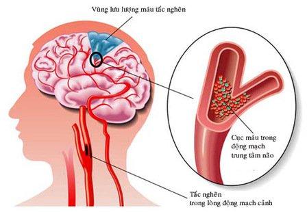 Đột quỵ não: Nguyên nhân, triệu chứng và cách điều trị