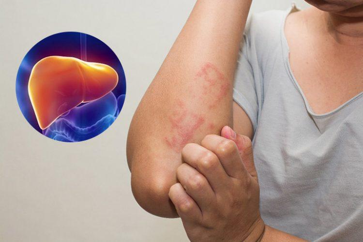 Dị ứng, mẩn ngứa kéo dài cảnh báo dấu hiệu về gan