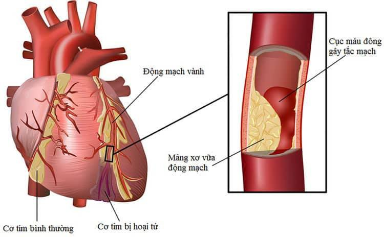 Triệu chứng bệnh mạch vành: 6 dấu hiệu sớm không nên bỏ qua