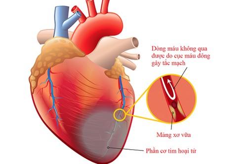 Thiếu máu cơ tim có nguy hiểm không?