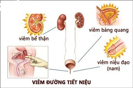 Cảnh giác các biến chứng của viêm đường tiết niệu