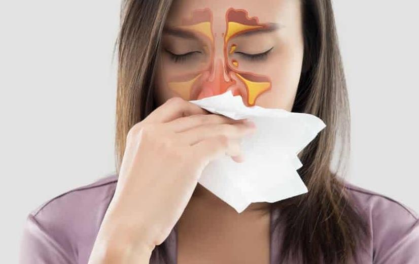 Tìm hiểu dấu hiệu điển hình của viêm xoang