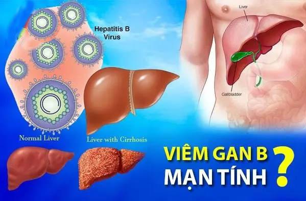 Những điều cần biết về viêm gan B mạn tính